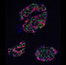 Human islets (nPOD 6047) stained for proinsulin (green), insulin (pink) and chromogranin (blue) (L. Zhang).
